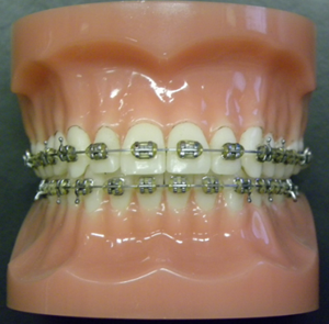Types-of-Braces-1