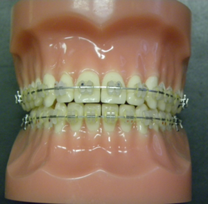 Types-of-Braces-2